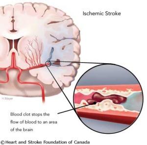 stroke_isc_web